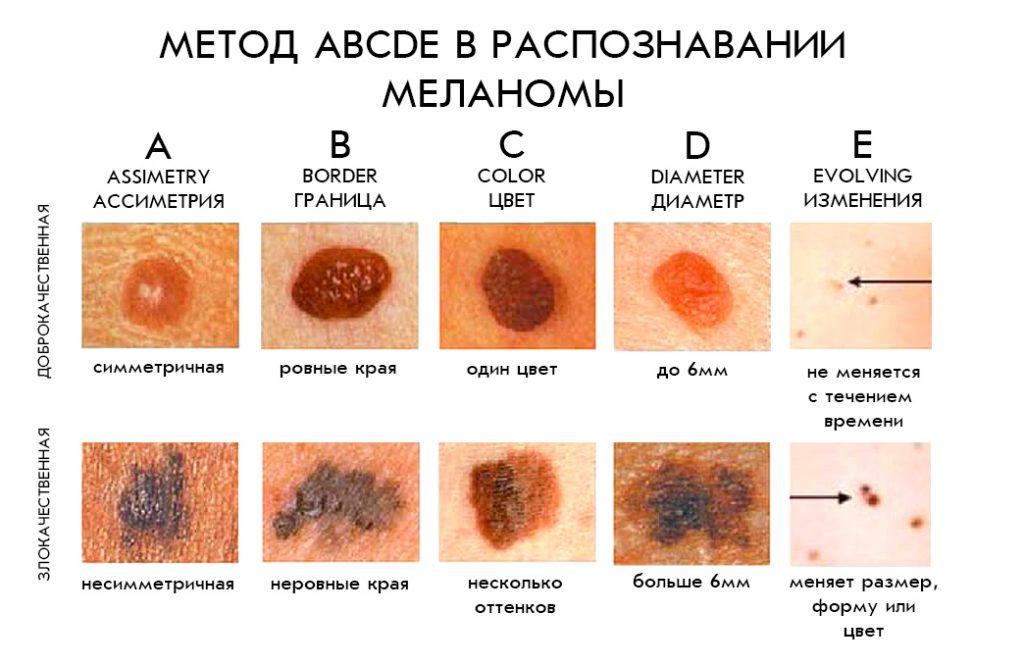samodiagnostika melanomy 5 priznakov abcde