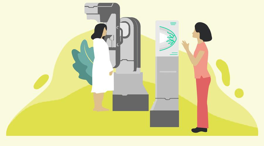 mammografija