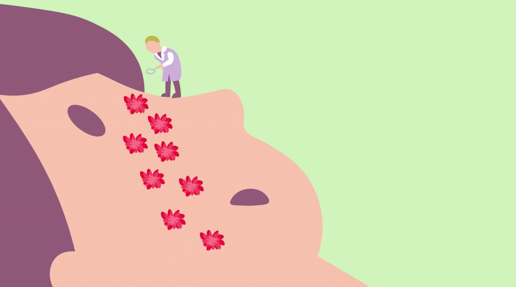 kak diagnostirovat allergiju samostojatelno