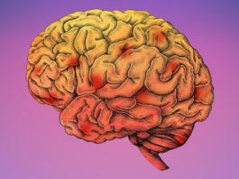 rannjaja diagnostika alcgejmera vivavita vitajournal