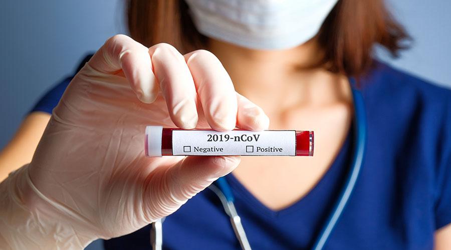 koronavirus diagnostika