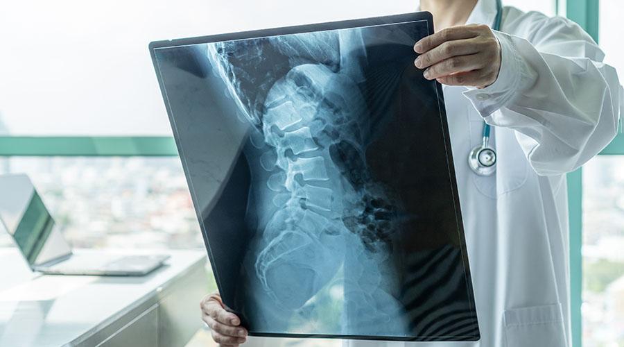 rentgen pozvonochnika